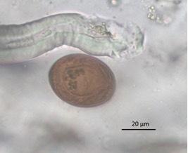 Platynosomum Fastosum Egg