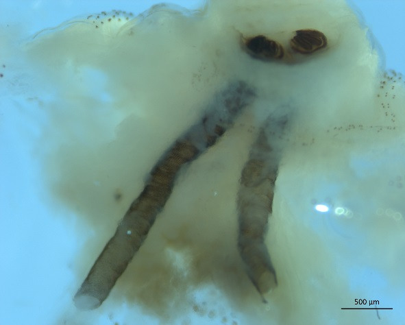 Cochliomyia Hominivorax 3rd Instar Larva Tracheal Trunks